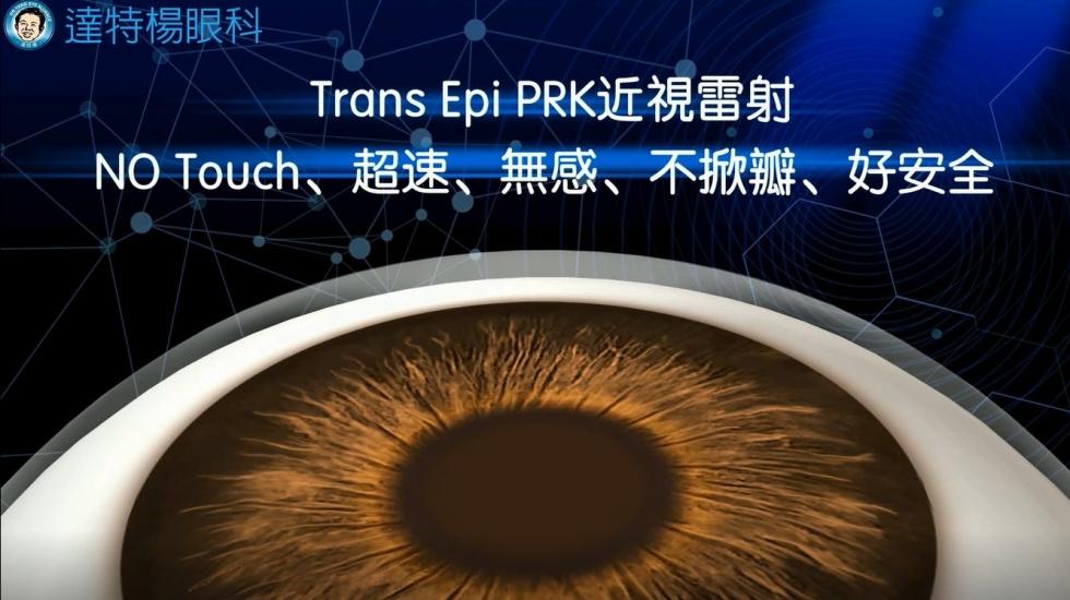Trans Epi PRK 近視雷射流程